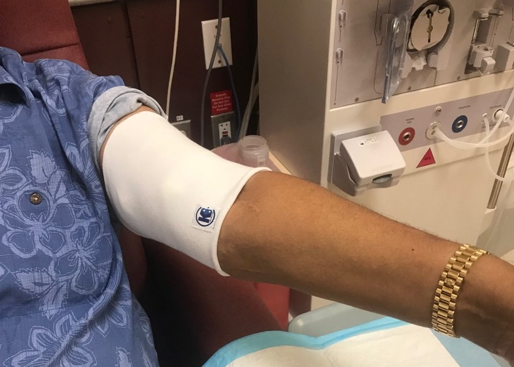 Longtime dialysis patient trying the dialysis arm sleeve for the first time.  Click here  to order.