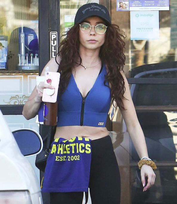 0d22535e9 Celebrity Actress Sarah Hyland Shows Her Kidney Transplant Scar And ...