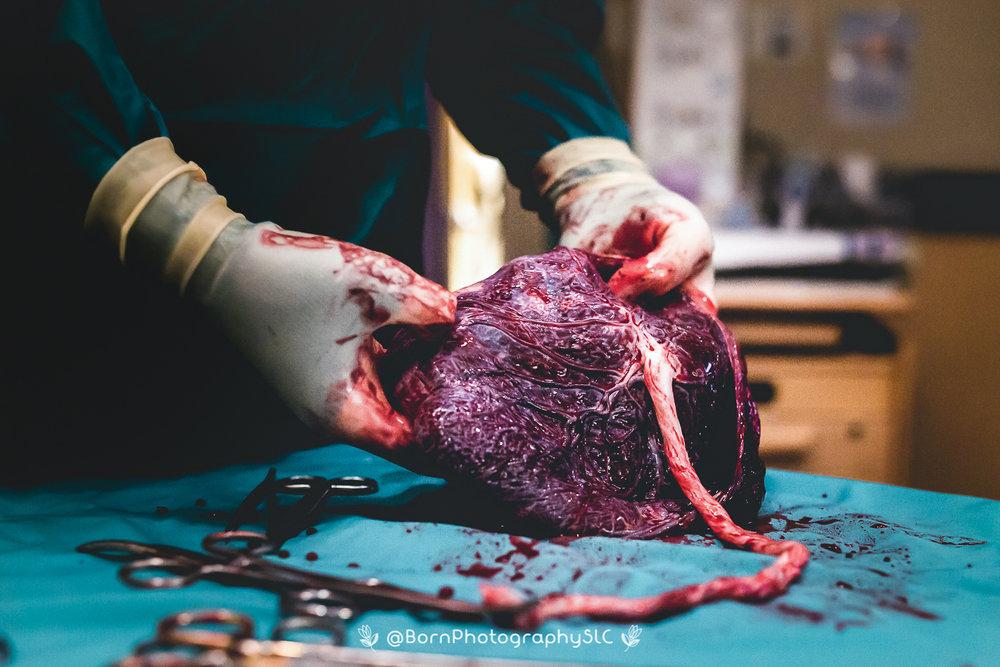 The-Placenta-Birth-Photography-Salt-Lake-City,-Park-City-Utah-1.jpg