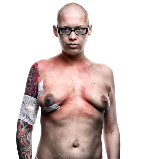 "Aaron Goldman - ""Breast Cancer"""
