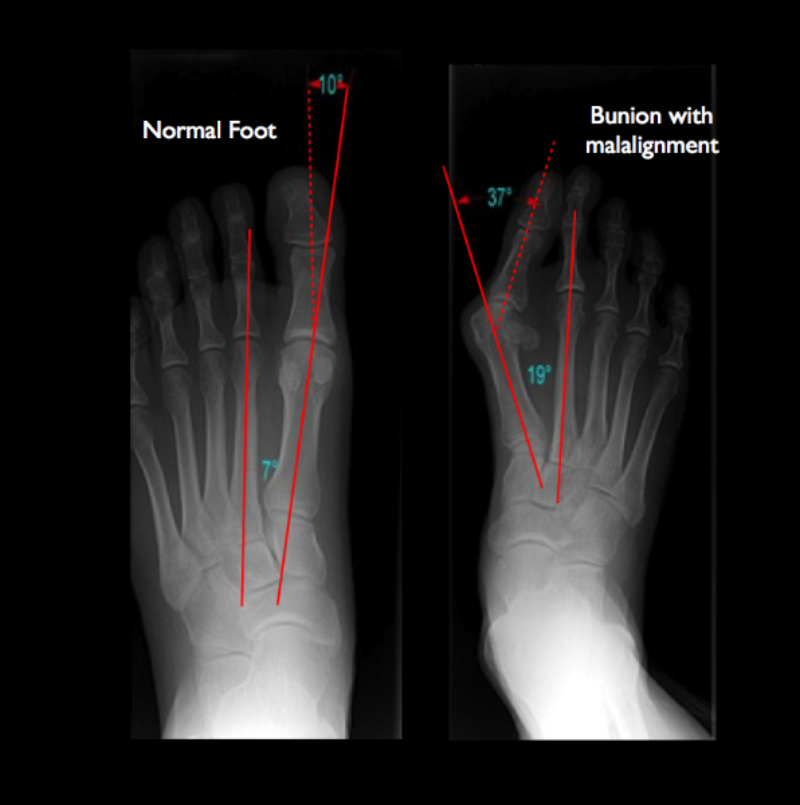 Left: Normal foot. Right: Bunion Deformity.