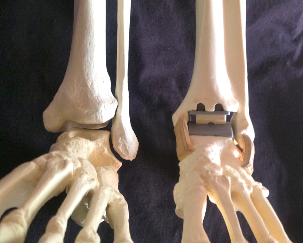 the ankle joint on the left and a model with a total ankle replacement on the right.