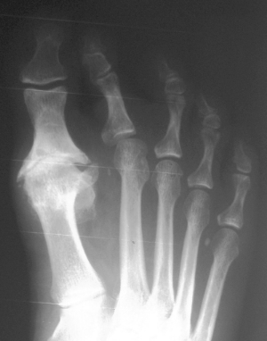 Plantar plate tears orthopaedic foot ankle reconstruction a radiograph of a patient with a plantar plate tear and deviation of the second toe publicscrutiny Image collections