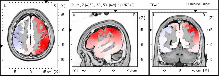 brain loreta.JPG
