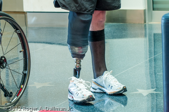A wounded soldier at Brooke Army Medical Center