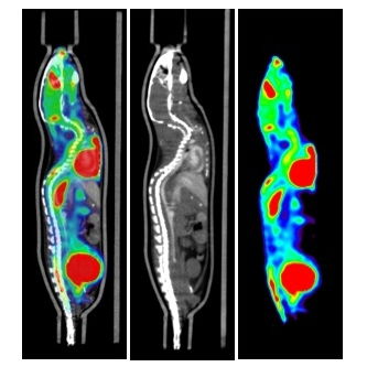 Alignment of PET/CT with BCAM