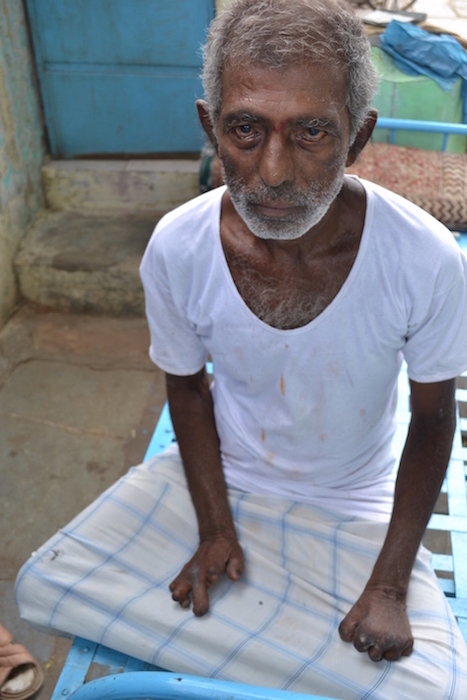 A leprosy patient of the Gandhi Leprosy Seva Sangh.