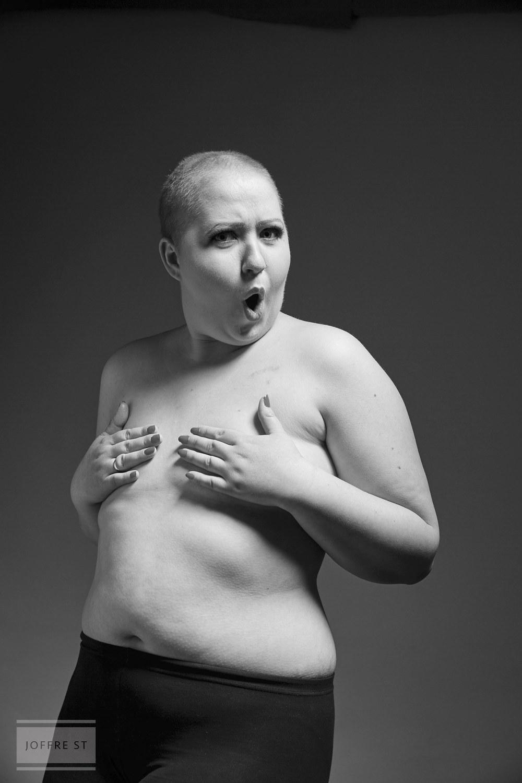 Рак так так лысая девчонка 17 фотография