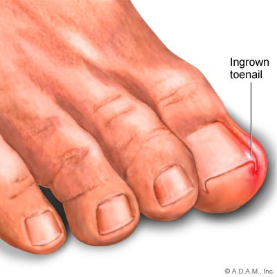 how to tell if a have a ingrown toenail