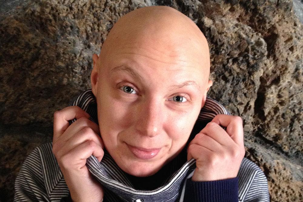 alopecia-totalis.jpg