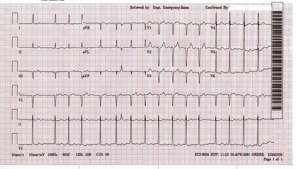 Atrial Fibrillation (x2)