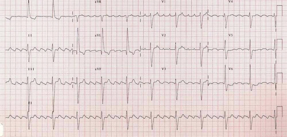 Atrial Flutter with 4 to 1 block
