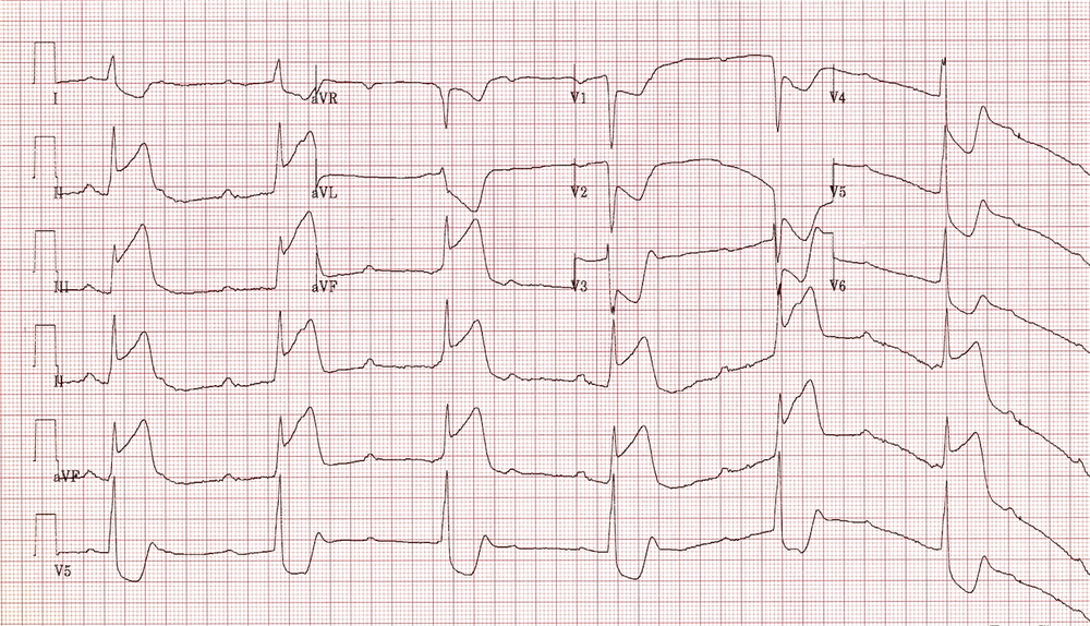 AV Block 3rd Degree (Complete Heart Block)