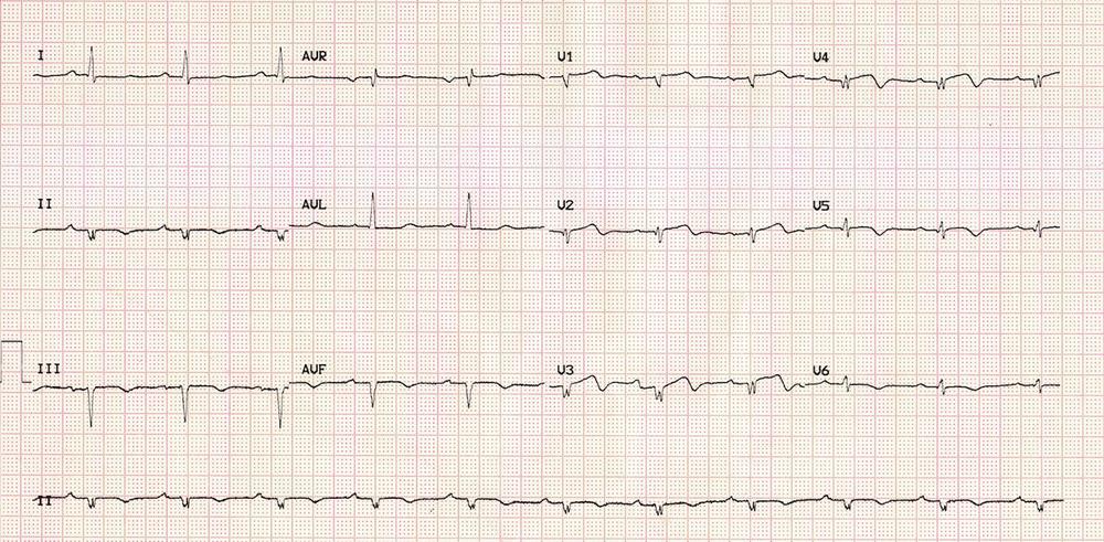 Low QRS Voltage