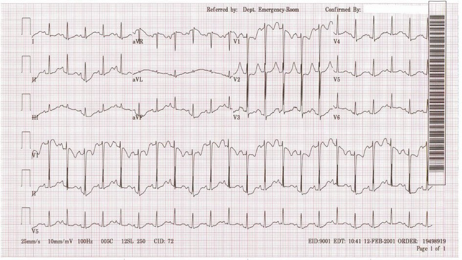 Pediatric Sinus Tachycardia
