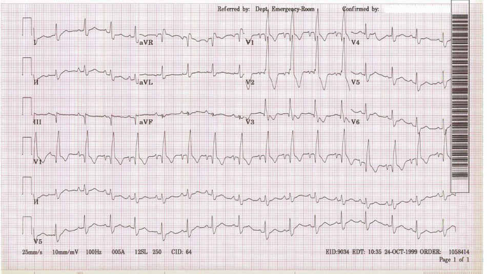 Right Bundle Branch Block (x2)