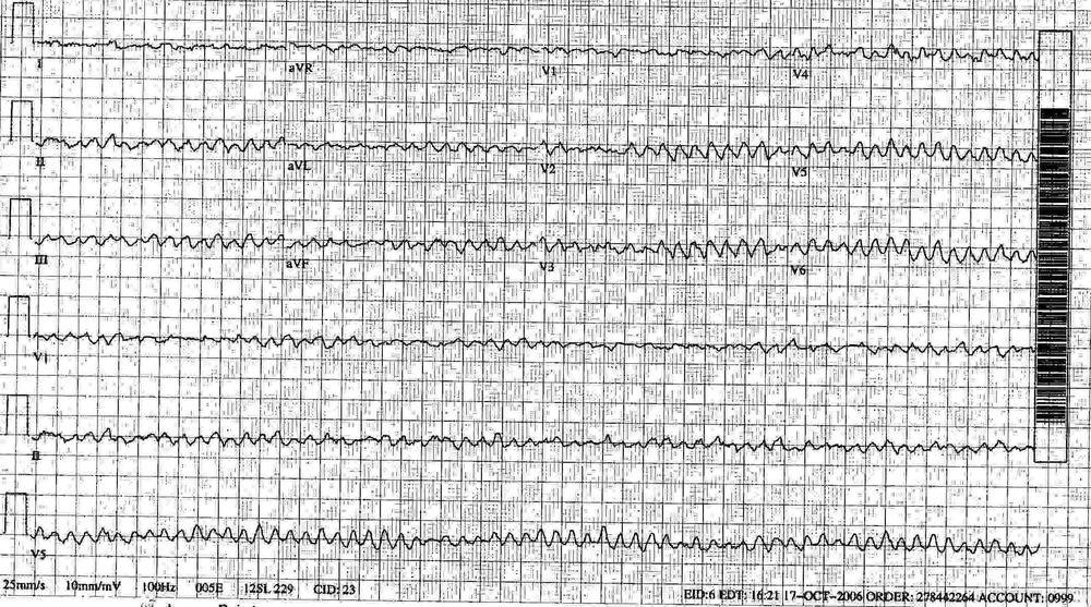 Ventricular Fibrillation Ekg Ventricular Fibrillation