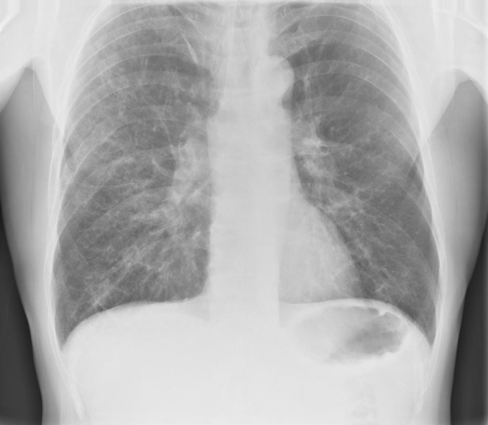 Pneumonia Rightside Diffuse