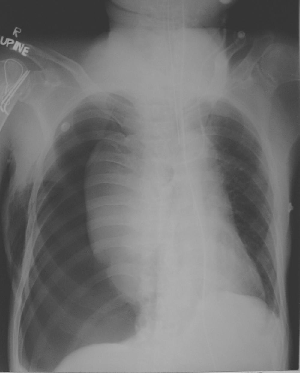 Pneumothorax   X-ray (severe) 1