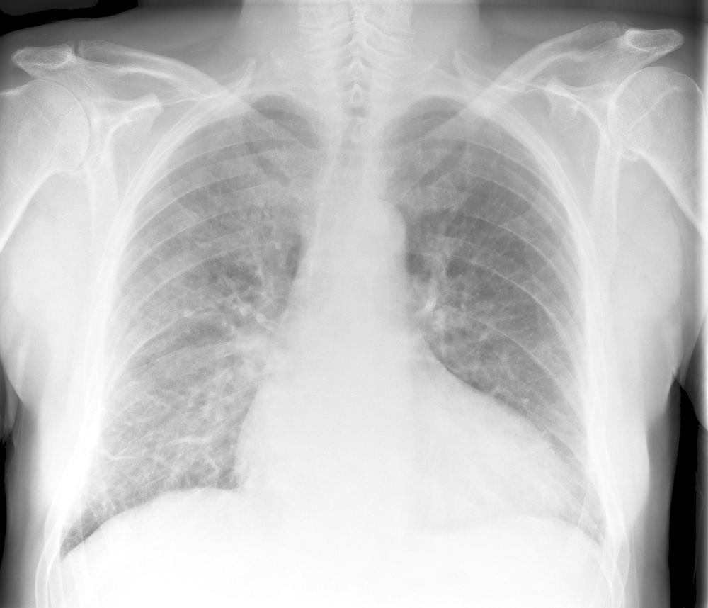 Pulmonary Edema (mild)
