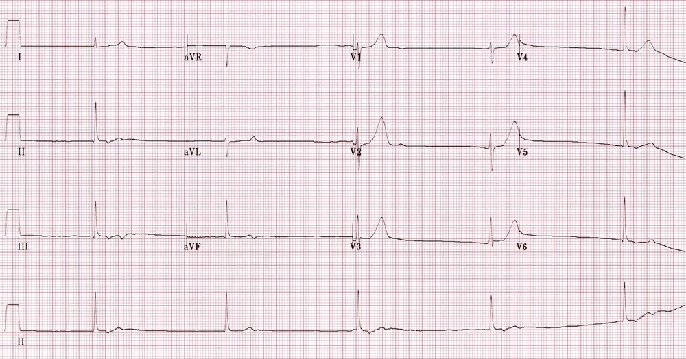Junctional - Bradycardia