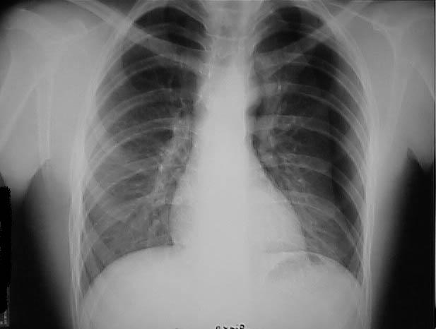 Pneumothorax (moderate)