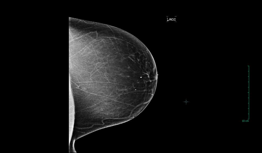 Breast Normal