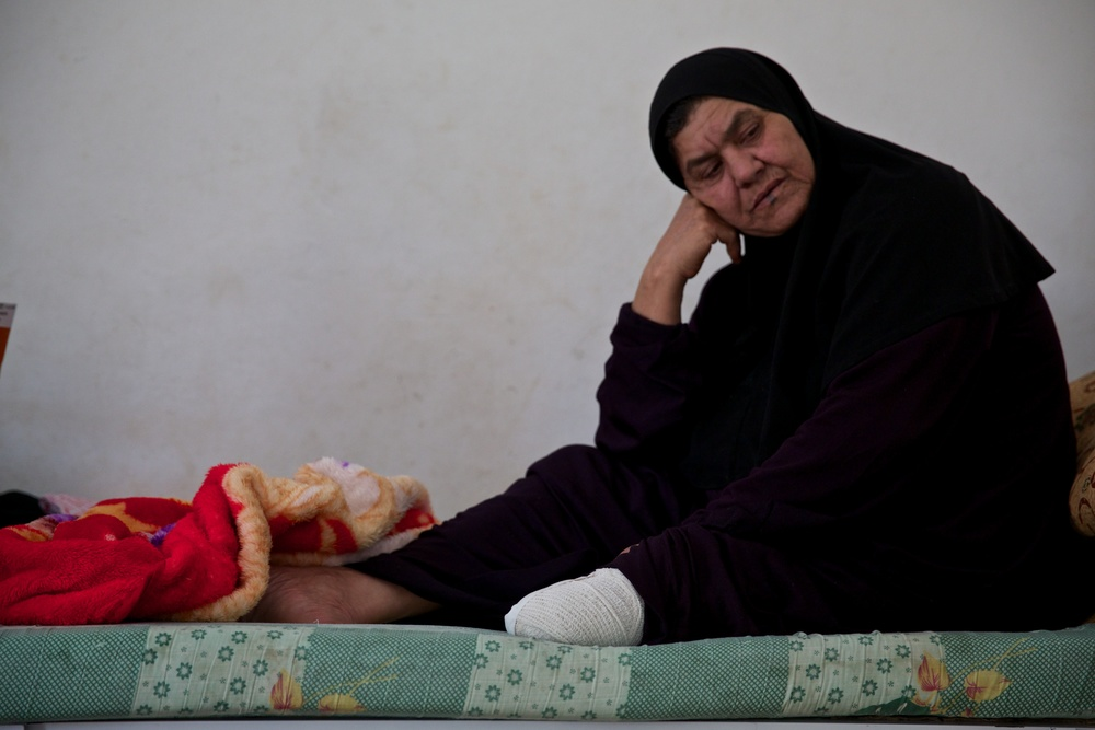 This woman to a taxi back into the war in Syria to have her leg amputated. It was the only way her family could afford the operation.