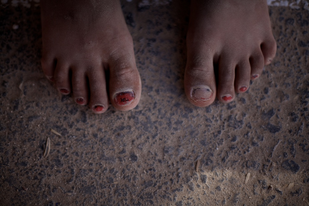 Two week old toe nail polish at Zaatari refugee camp in Jordan.