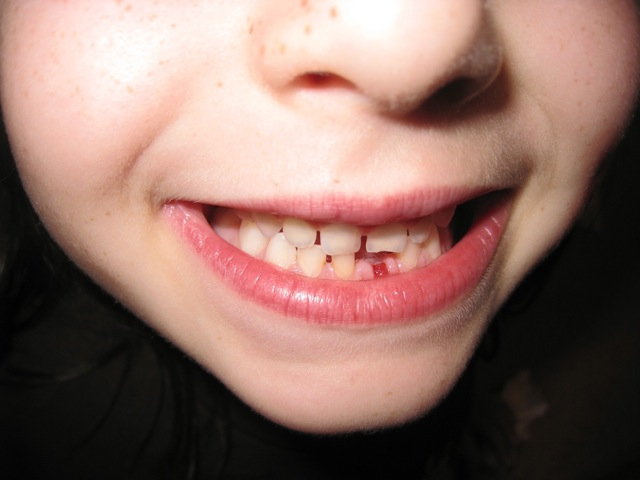Emma Lost Her First Tooth