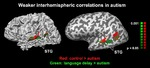 Click photo to download. Caption: Weaker interhemispheric correlations in autism. Credit: Neuron.