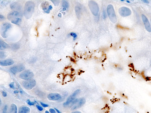 The Israeli start-up BiomX's initial products are intended to treat acne and Helicobacter pylori bacteria (pictured). Credit: KGH via Wikimedia Commons.