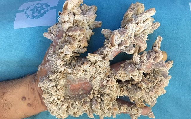"A picture of the Palestinian man's hand covered in tumors, a condition known as ""tree man"" syndrome. Credit: Hadassah."