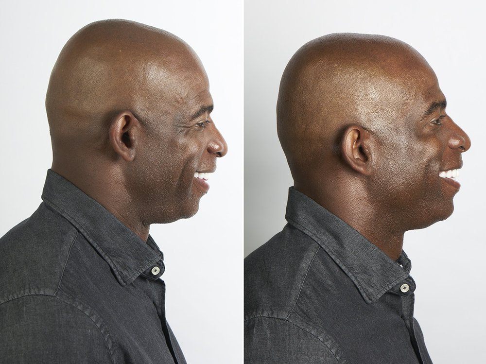 deion_sanders_botox_before_after.jpg