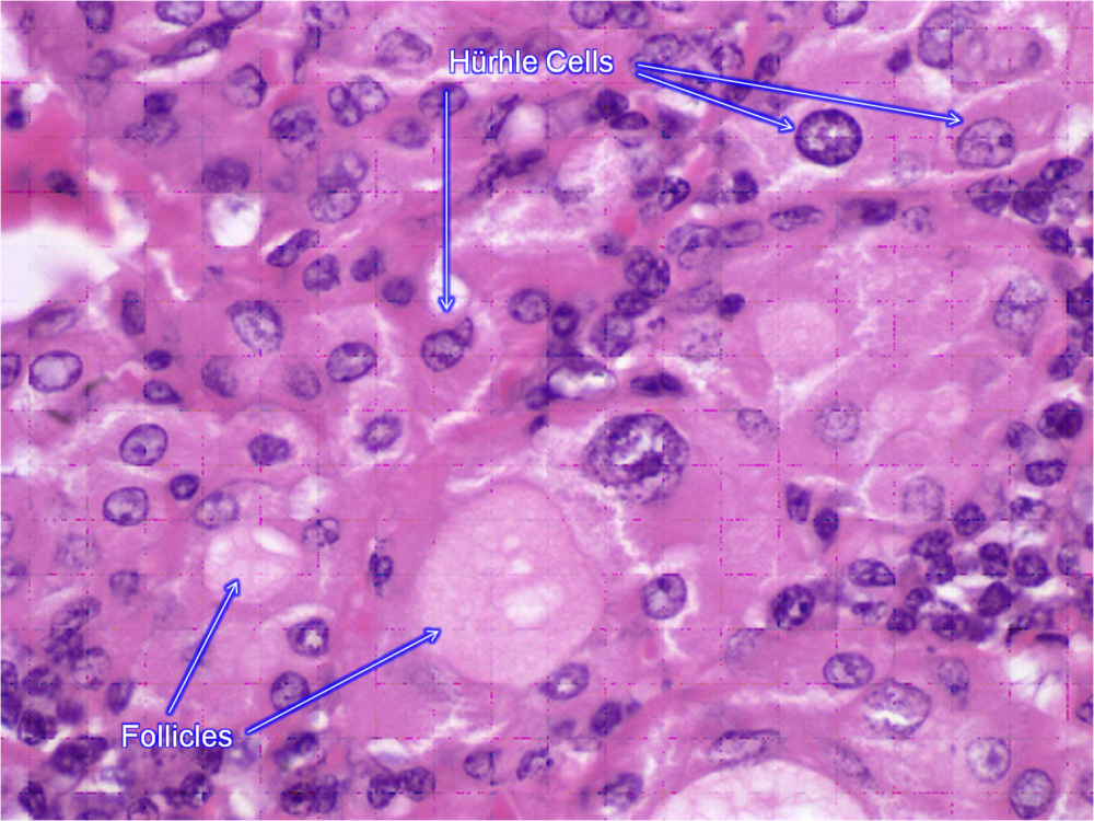 hurthe_cells1359252859369.png