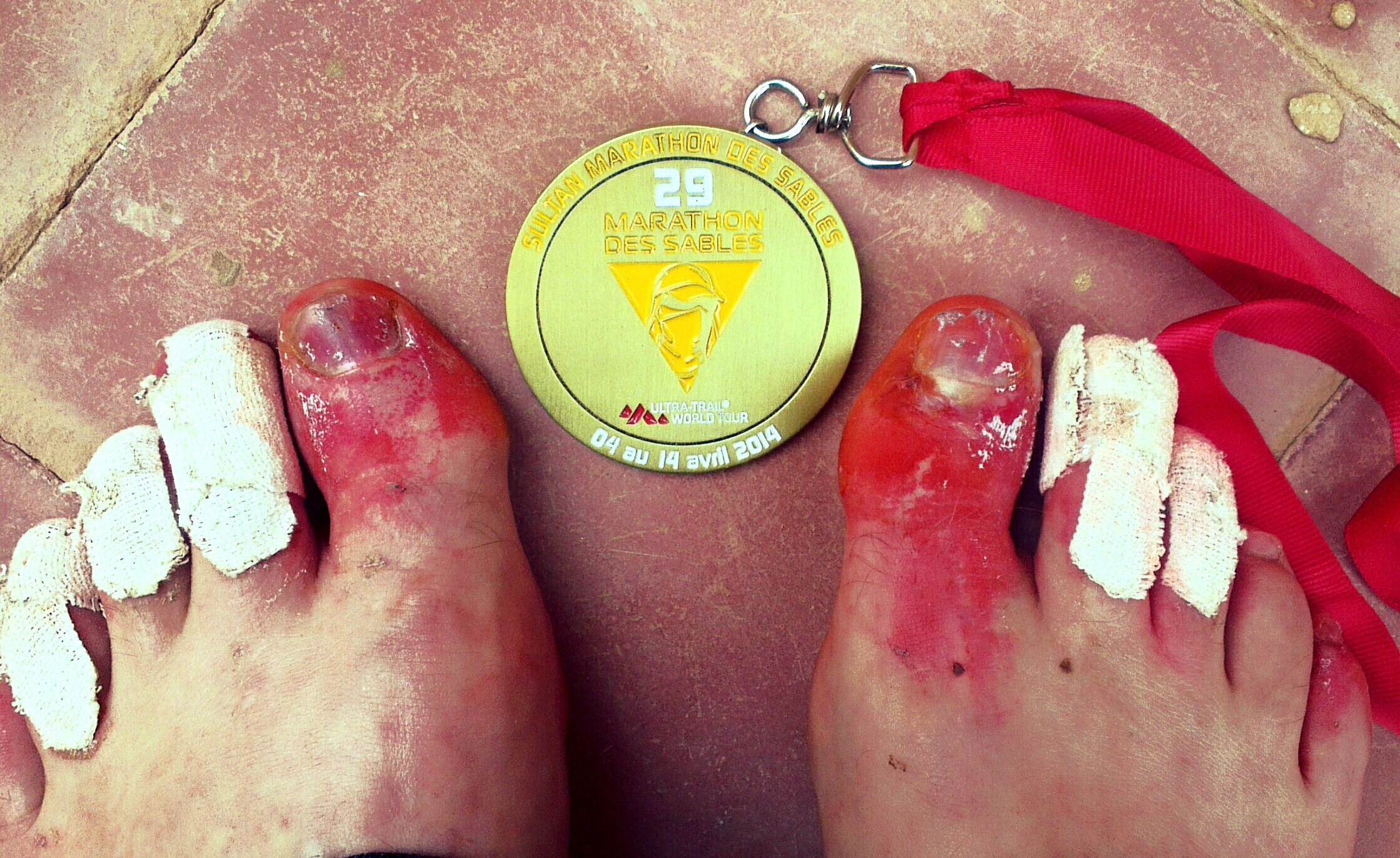 Toes and medal