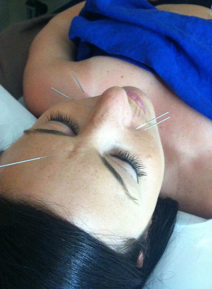 My lovely experience with Acupuncture!