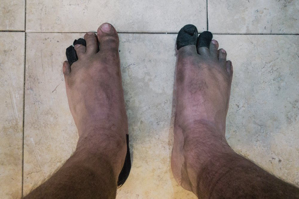 My swollen and blistery feet.