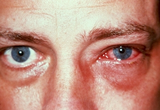 "CONJUNCTIVITIS (""PINK EYE""):   Conjunctivitis is the inflammation of the conjunctiva, the protective membrane that covers the surface of the eye and inner surface of the eyelids.  Caused by infections, such as from bacteria, viruses, and fungi, allergens, and other irritants like smoke and dust, it is sometimes highly contagious and is usually accompanied by redness in the white of the eye and increased tearing and/or discharge.  While many minor cases improve within two weeks, some can have serious corneal involvement and threaten sight, for which early treatment is crucial."