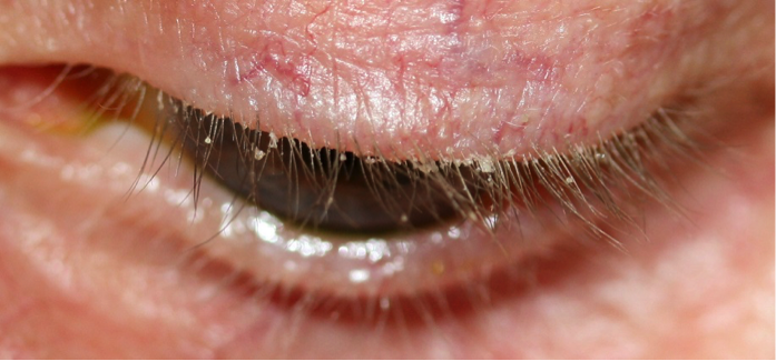 BLEPHARITIS:   Blepharitis is a general term for an inflammation of the eyelid and eyelashes.  It is among the most common and stubborn eye conditions usually resulting from poor eyelid hygiene, a low-grade bacterial infection (usually staphylococcal), an allergic reaction, mites, and/or abnormalities in oil gland function.  Like some other skin conditions, blepharitis can be controlled but may not be cured.  The main goals in treating it are to reduce the amount of bacteria along the lid margin and open plugged glands.