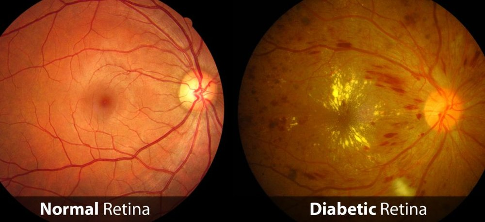 DIABETIC EYE DISEASE:   Diabetic patients should have a dilated retinal examination annually. Diabetes can cause existing and newly formed blood vessels to bleed and leak, damaging the retina.  If this condition is discovered early, certain eye injections can stop the growth of these vessels, and laser treatment can destroy them.  We have the latest technology to detect even the most subtle changes in the retina, and if we discover advancing diabetic eye disease, we will ensure that you receive the appropriate treatment.
