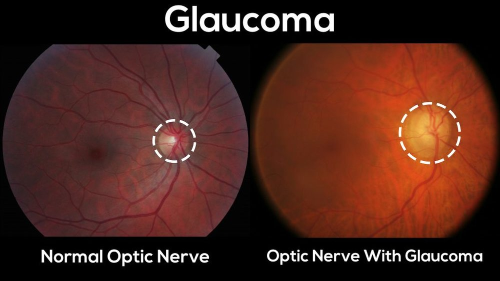 GLAUCOMA:   Glaucoma gradually destroys the optic nerve tissue in the back of the eye.  The greatest danger of glaucoma stems from the fact that it is painless, and that it has no obvious visual symptoms until significant damage has already occurred.  It is oftentimes but not always associated with high pressure within the eye, which causes mechanical stress on the optic nerve, but vascular auto-regulatory insufficiency and other currently researched areas may play a role in its etiology.  We always monitor for glaucoma during routine eye examinations.  Tests include checking the pressure of the eyes, screening for peripheral vision defects, and analyzing the appearance of the optic nerve. If you are diagnosed with glaucoma, we typically prescribe medications in the form of topical eye drops that lower the eye pressure, successfully managing most cases of glaucoma. Specific laser treatments and eye surgeries are available in more advanced cases.