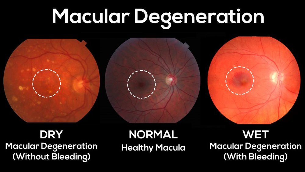 "AGE-RELATED MACULAR DEGENERATION (AMD):   This eye disease, which we manage, occurs when there are changes to the macula, a small portion of the retina that is responsible for central, detailed, and color vision.  It can occur in two forms, ""dry"" (atrophic) and ""wet"" (exudative).  Most people with macular degeneration have the dry form, which does not involve any bleeding or leakage.  The less common wet form may respond to certain eye injections and laser procedures, if diagnosed and treated early.  Some common symptoms are a gradual loss of the ability to see objects clearly, distorted vision, a gradual loss of color vision, and a dark or empty area appearing in the central vision.  Central vision that is lost to macular degeneration cannot be restored.  Low vision devices, however, such as telescopic and microscopic lenses, can be prescribed to maximize existing vision.  Researchers have linked nutrients, such as lutein, zeaxanthin, vitamin C, vitamin E, and zinc, to reduced progression of macular degeneration."