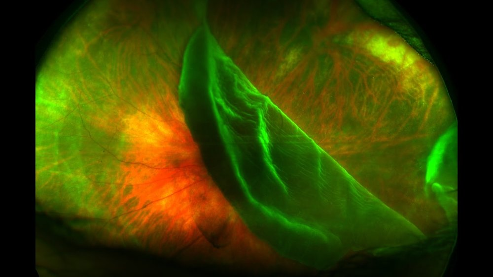 RETINAL HOLES, TEARS, & DETACHMENTS:   Retinal holes and tears can occur when the clear, gel-like substance in the center of your eye (vitreous) shrinks and tugs on the thin layer of tissue lining the back of your eye (retina) with enough traction to cause a break in the tissue.  This can be caused by injury to the eye.  They are often accompanied by the sudden onset of symptoms, such as floaters and flashing lights.  A retinal detachment is defined by the presence of fluid under the retina.  This usually occurs when fluid passes through a retinal tear, causing the retina to lift away from the underlying tissue layers.  Such breaks in the retina can be addressed with the application of laser treatments, cryotherapy, and other surgical procedures.
