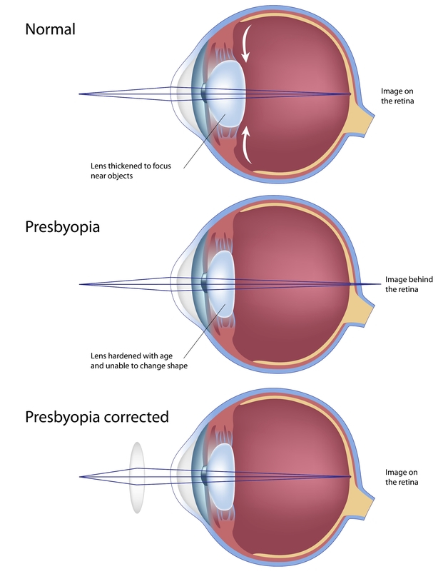 PRESBYOPIA (AGING EYES):  Aging eyes, medically known as presbyopia, is a condition in which the lens of the eye gradually loses its flexibility, making it harder to focus clearly on close objects, such as printed words. Distance vision, on the other hand, is usually not affected. Unfortunately, presbyopia is an inevitable part of aging and cannot be prevented by diet, lifestyle, or visual habits. However, it is treatable with several types of corrective lenses, including progressives, bifocals and trifocals, single-vision reading glasses, multifocal contact lenses, and monovision therapy.