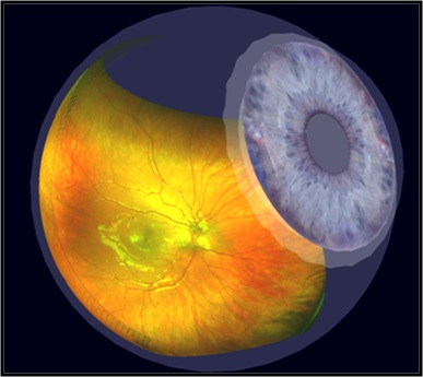 Optomap - Overall Eye Overview.jpg