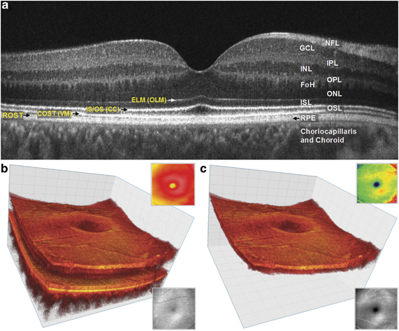 OCT - Retinal Layers & 3-D Rendering 2.jpg
