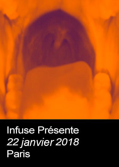 Infuse-1.jpg