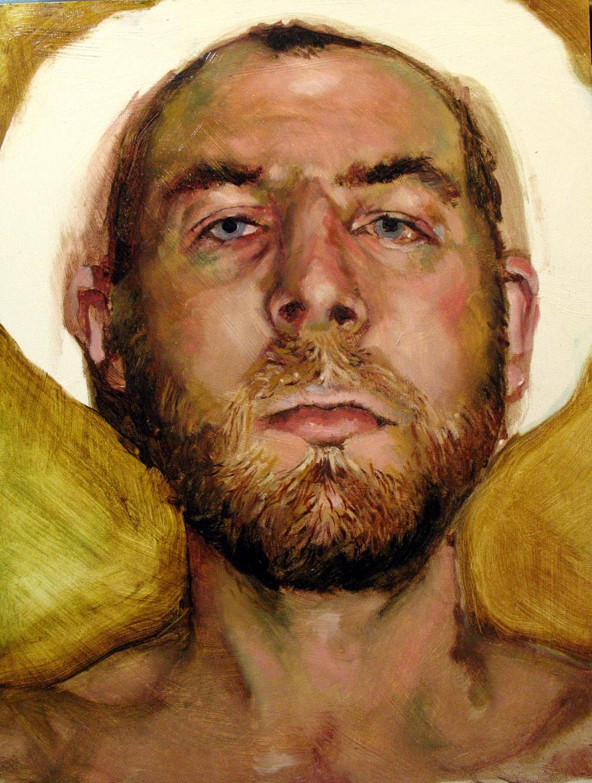 Self Portrait (with pinkeye)