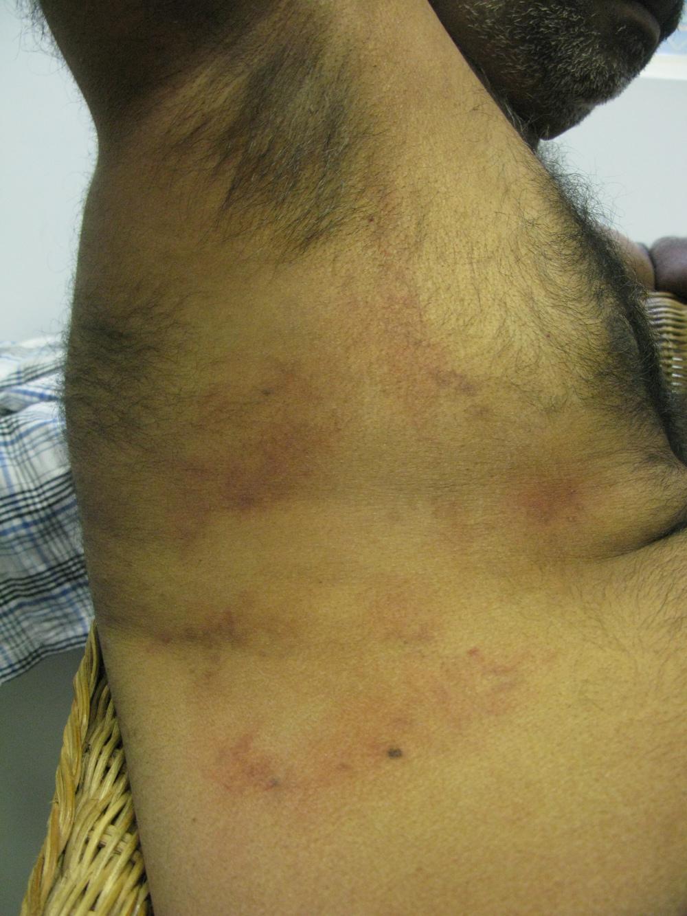 Bruising to Ribs